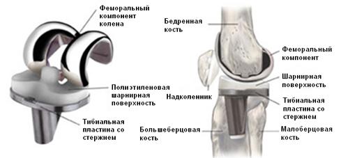 Эндопротезирование коленного сустава в Израиле.